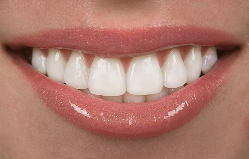 Dentist in Lake Wales, FL - Cosmetic Dentistry