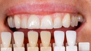 Veneers in Lake Wales, FL