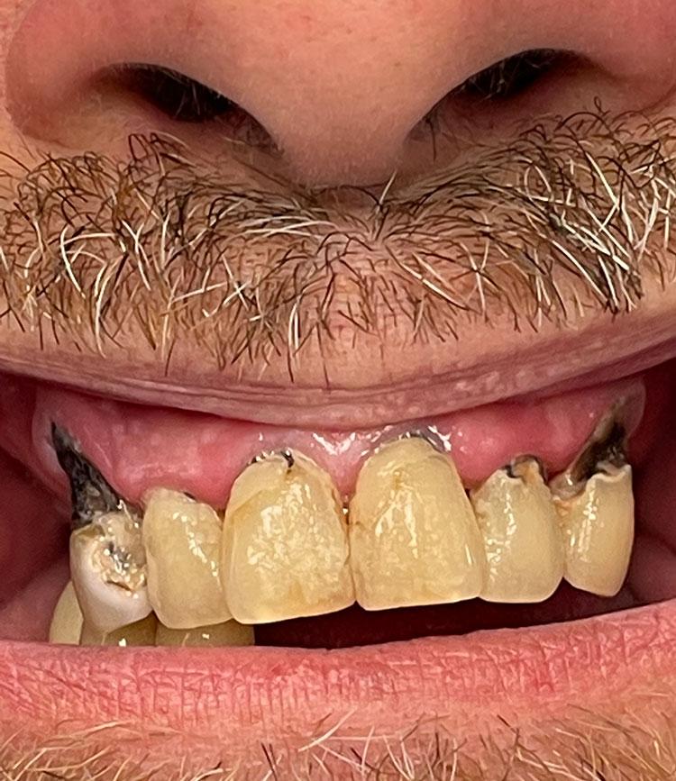 Dental Implants in Lake Wales, FL
